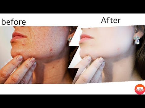 Skin Smooth And Glow New Secret Tricks 2021, Clean Face+ Hide Pimples, Snapseed Skin Smooth Editing.