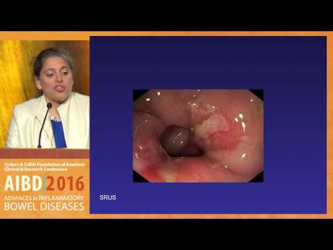 What Are The Common Mimics Of Ulcerative Colitis And Crohn's Disease?