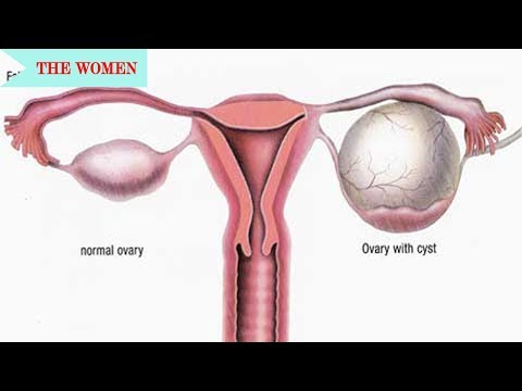 diagnosis-and-treatment-of-ruptured-ovarian-cysts||-general-gynaecological-issues