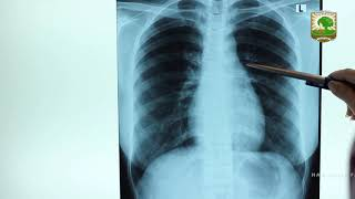 Video presentasi mahasiswi PPDSI I Radiologi Undip semester 1, dr. Aulia Fitriani, yang mempresentas.