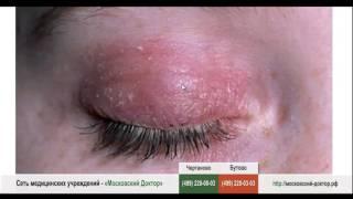 видео Аллергия на глазах