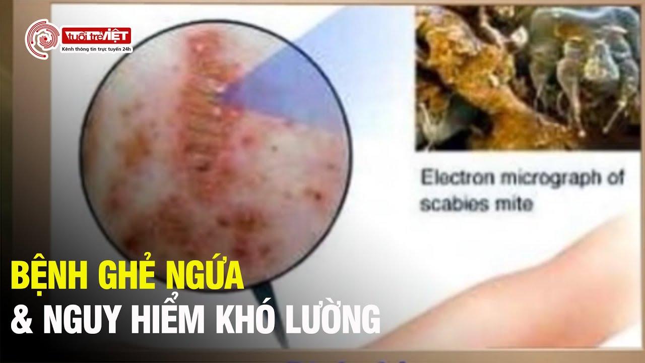 Bệnh ghẻ: Căn bệnh hay gặp nhưng ít người lường được nguy hiểm – Cẩm Nang Sống Khỏe – Tuoitreviet TV