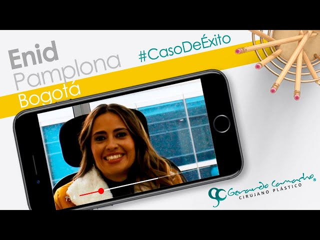 Testimonio Lipolisis Ultrasonica o Lipoescultura Vaser Bogota - Colombia