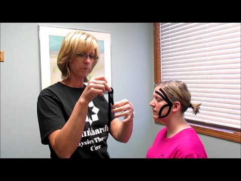 Burkhardt Physical Therapy Center: Kinesio taping for headaches, migraines, and TMJ pain