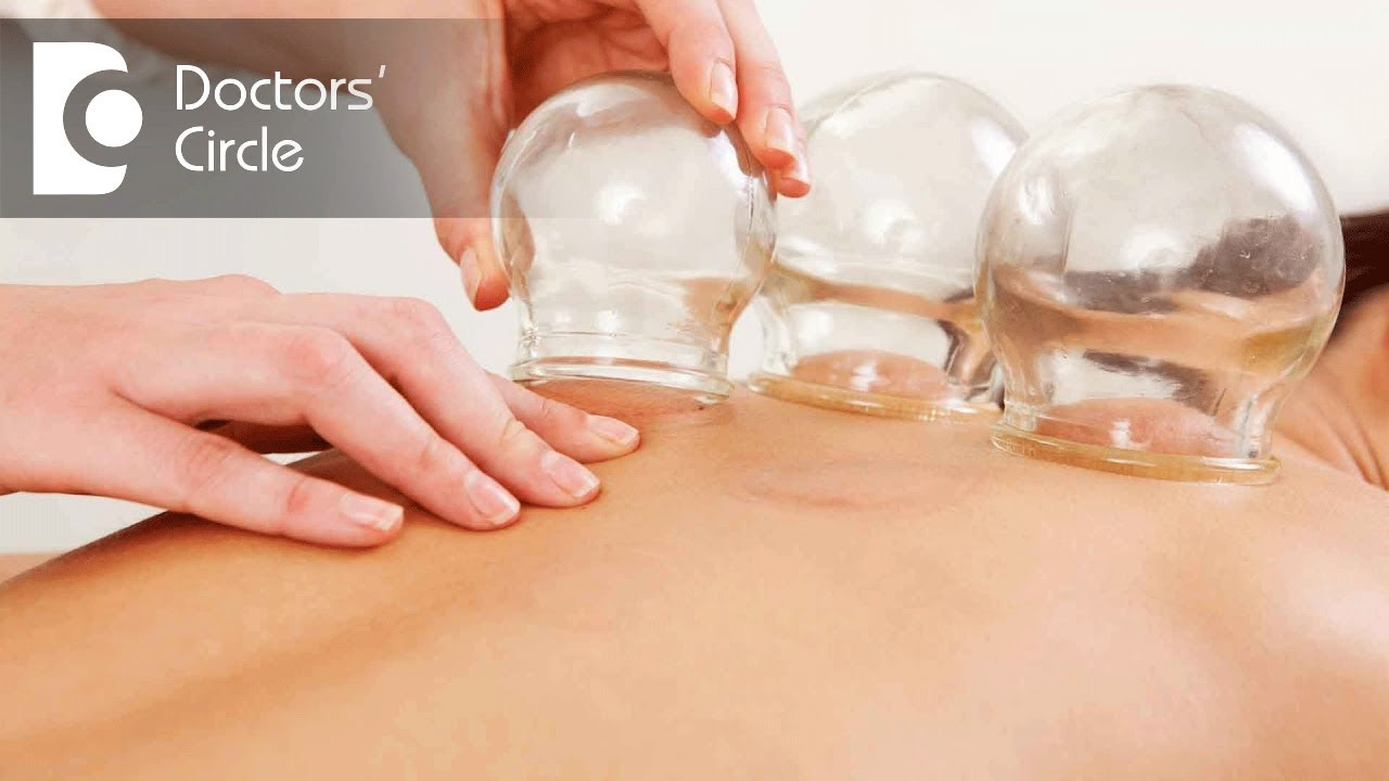 Image result for hijama therapy