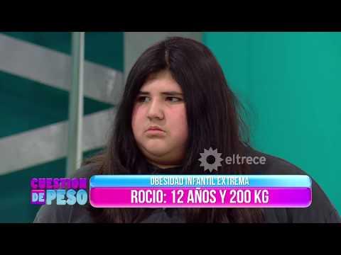 Conocé a Rocío, la joven de 12 años que pesa 200 kilos