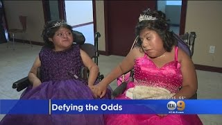 Formerly Conjoined Twins Preview Their Quinceanera Dresses At Children's Hospital LA Event