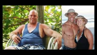 Убрать кожу с живота фото до и после