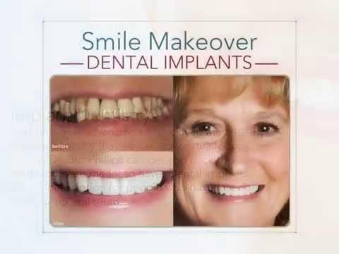 Dental Implants Ft Worth