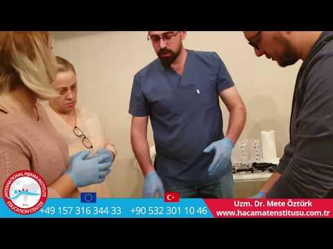 İstanbul Hacamat Kursu Hacamat Noktaları Göre Hastalık Teşhisi Uzm. Dr Mete ÖZTÜRK +90 532 301 10 46