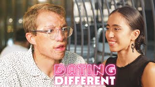 My Burns Stop Me Finding Love - Will My Blind Date Care?   DATING DIFFERENT
