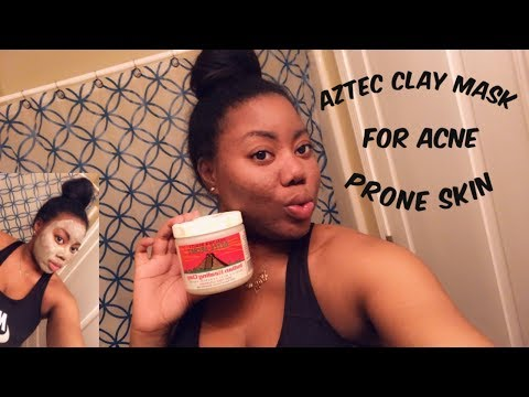aztec-clay-mask-&-apple-cider-vinegar-for-acne-prone-skin