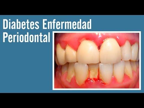 Enfermedad periodontal / Diabetes como factor de riesgo