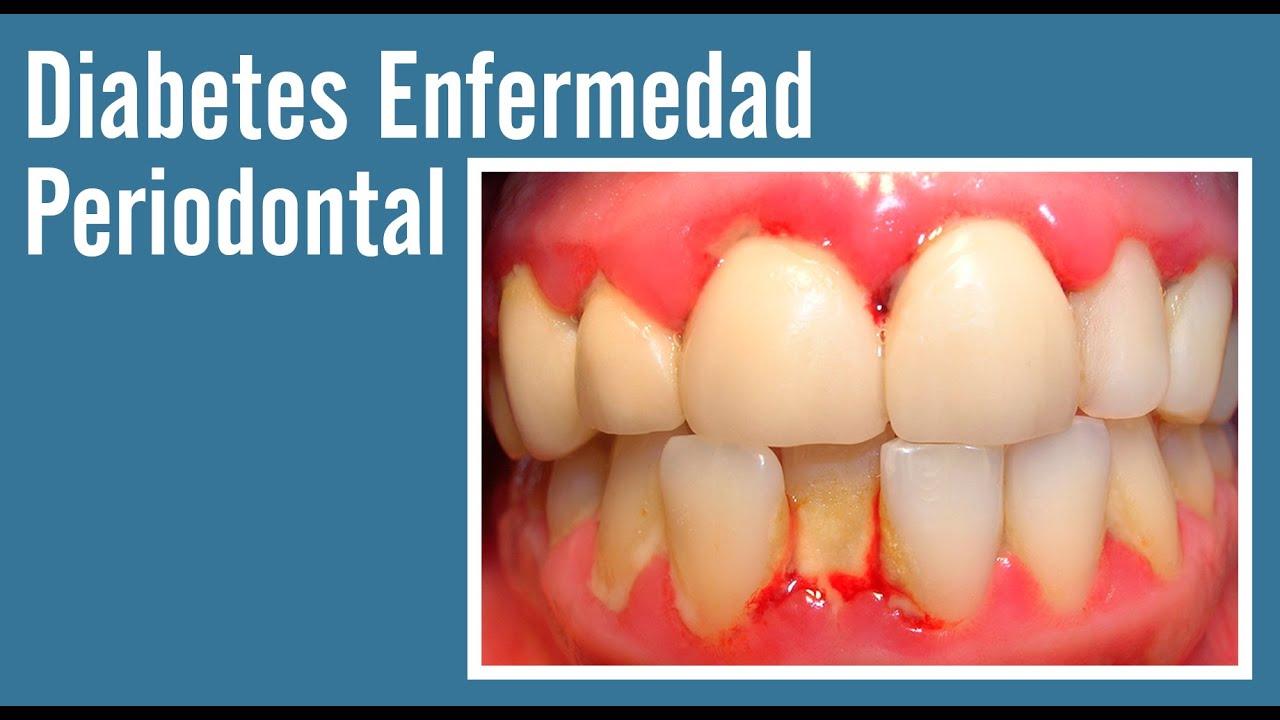 diabetes y problemas dentales ppt