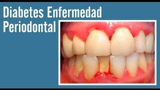 Con enfermedad articulos la diabetes relacionada periodontal