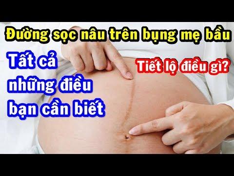 Đường sọc nâu trên bụng mẹ bầu tiết lộ điều gì? Tất cả về đường sọc nâu trên bụng mẹ bầu