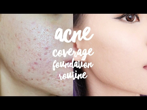 UPDATED ACNE FULL COVERAGE FOUNDATION ROUTINE || VERONICA ONG