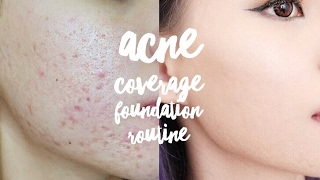 Video UPDATED ACNE FULL COVERAGE FOUNDATION ROUTINE || VERONICA ONG download MP3, 3GP, MP4, WEBM, AVI, FLV Desember 2017