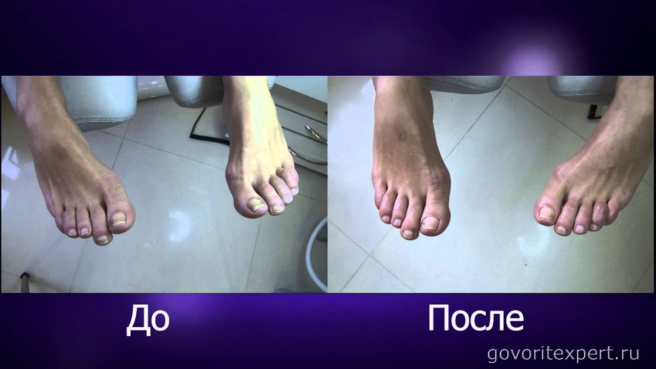 Как удалить ноготь больной грибком народным средством