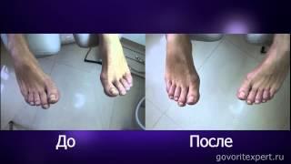 Что такое Вросший Ноготь? Как Возникает Вросший Ноготь? Грибок ногтей. Говорит ЭКСПЕРТ /Says Expert/(http://beautylounge.ru Почему возникает Вросший ноготь и Грибок ногтей? Каковы причины возникновения вросшего ногтя?..., 2013-10-23T12:30:18.000Z)