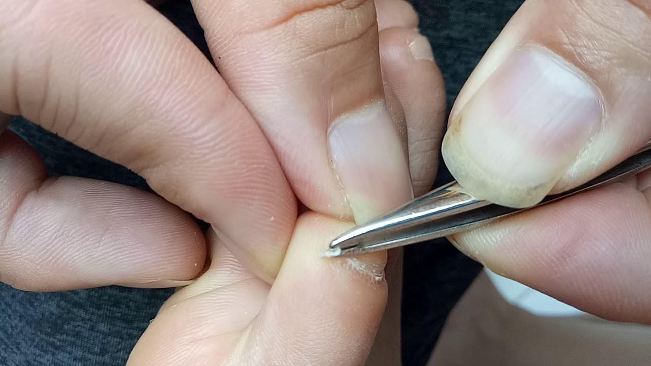 Pulling Out a Split toenail, Accessory toenail, Han chinese toenail ...