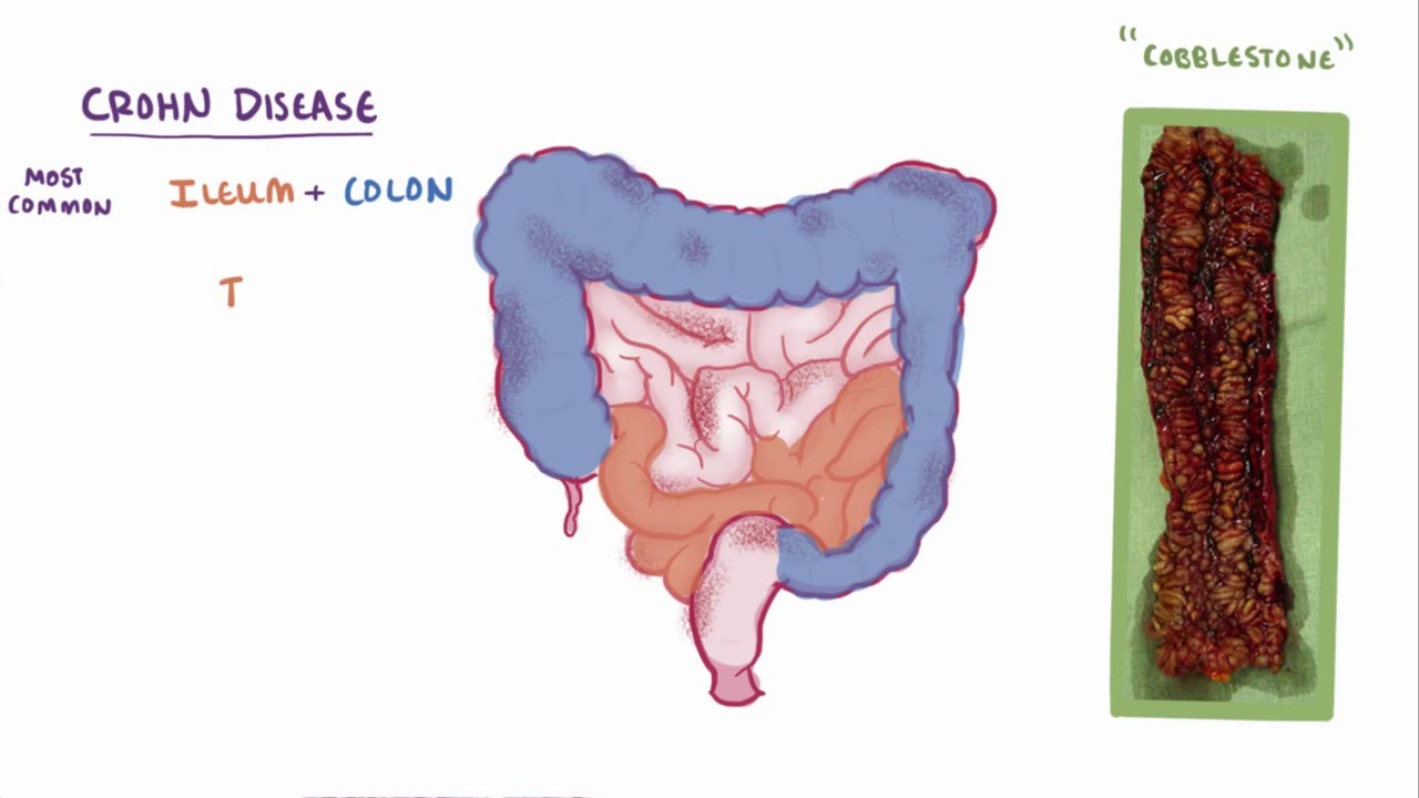 recognizing the early symptoms of crohns disease If you have crohn's disease, you might be symptom-free for weeks or even months then, without warning, you can experience stomach pains or a fever those are two possible symptoms of a flare.