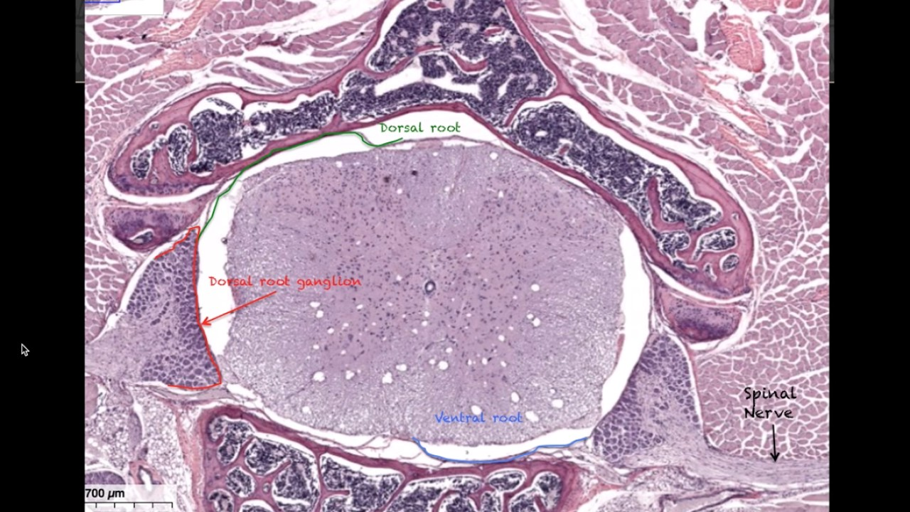 Histology of the spinal cord - Anatomy - YouTube
