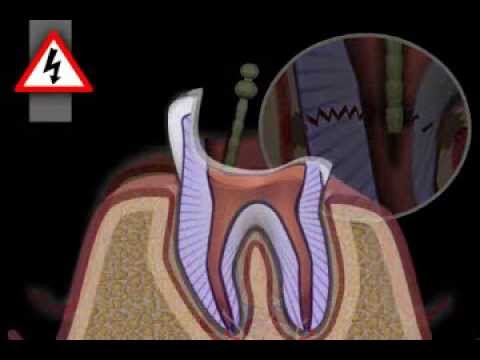 Tooth Core Build Up