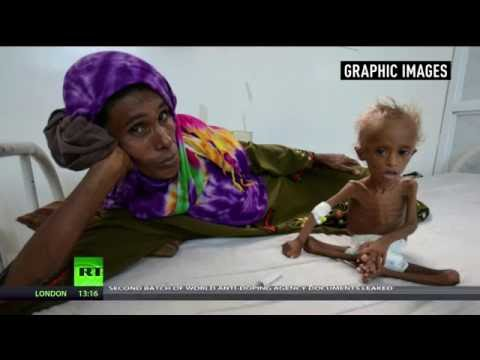 Shocking images of starved toddler show horrors of Yemen's civil war (Graphic)