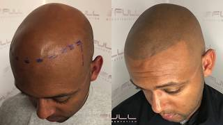 Life Changing Smp Testimonial - Full Micropigmentation - Las Vegas