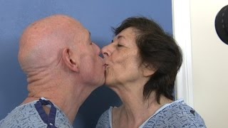 Tandem Facelift for Couple in Their 70s