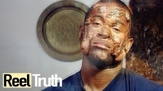 The Man Covered in Boils: Hidradenitis Suppurativa | Medical Documentary | Reel Truth
