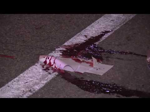 Chula Vista: DUI Crash/Major Injury 10132016