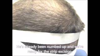 Dr  Lindsey 4 5 month followup on 23 year old guy frontal case McLean VA