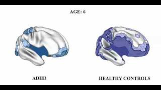 Brain matures a Few Years Late in ADHD, but follows Normal pattern