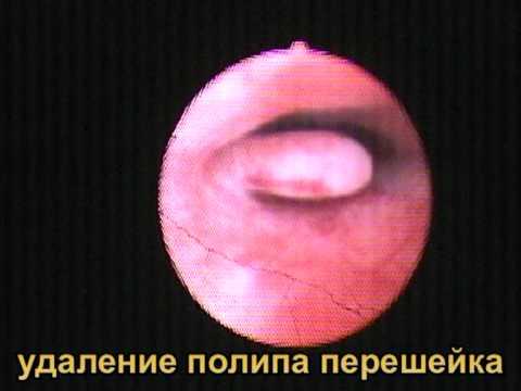 Железисто-фиброзный полип эндометрия может развиваться в