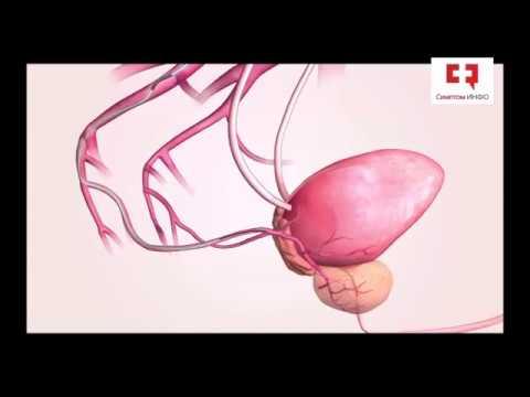 Отзывы о мавит для лечения простатита
