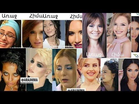 Հայ հայտնիներ ովքեր դիմել են պլաստիկ վիրահատության եւ դարձել են իսկական գեղեցկուհիներ: