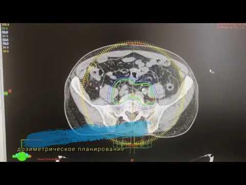 Лечение рака мочевого пузыря без операции. Лучевая терапия рака мочевого пузыря.
