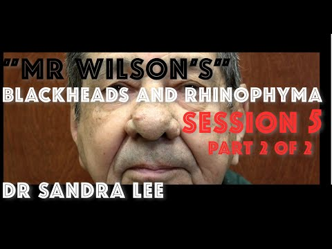 """""""Mr Wilson's"""" blackhead extractions, Session 5, Part 2 of 2:"""