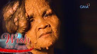 Wish Ko Lang: Ang sakit na Neurofibromatosis ni Thelma