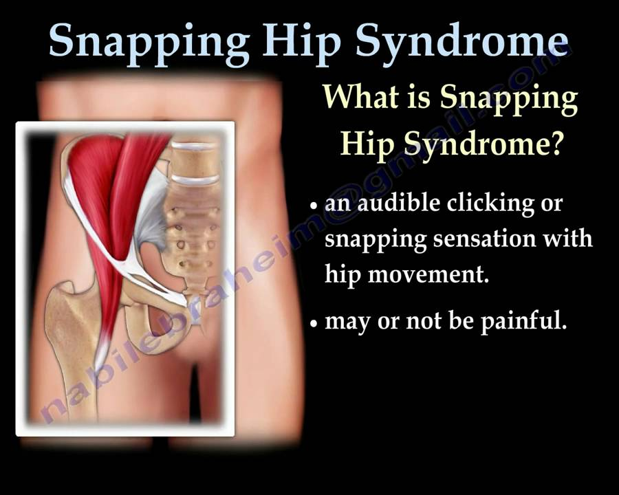 snapping hip syndrome everything you need to know dr nabil ebraheim youtube