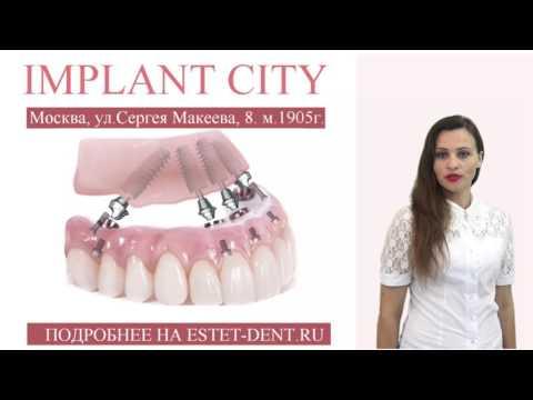 Протезирование зубов в Москве от 3 000 рублей, стоматология