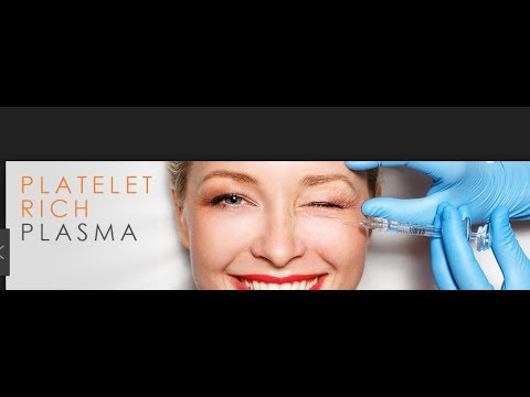 Plasma hair restoration @ Loudoun Medical Aesthetics