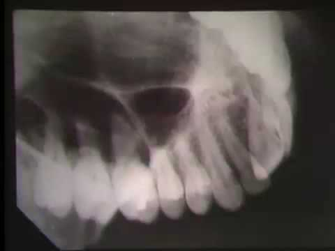 OCCLUSAL RADIOGRAPH DOWNLOAD