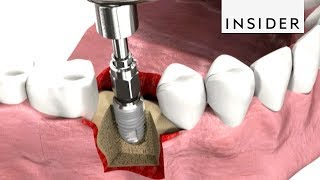How Dentists Insert Dental Implants
