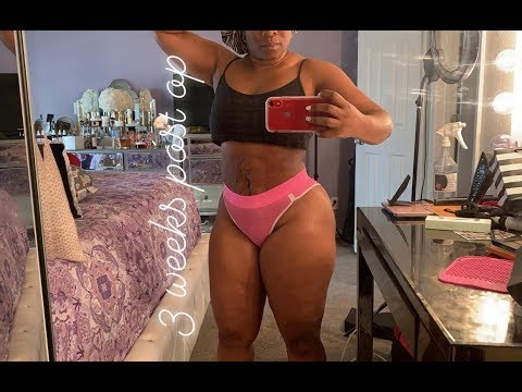 Lipo 360 Lateral 3 Weeks Post Op Journey Part 1 Youtube