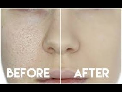 how to get rid of large pores naturally in 3 days