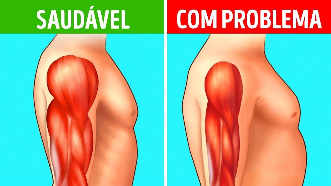 sindrome de becker sintomas de diabetes