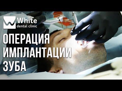 Реальная операция -  имплантация зуба. Установка имплантата по шаблону